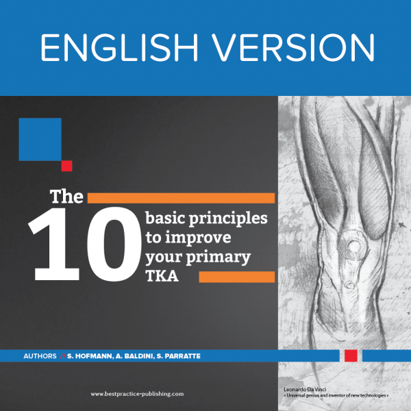 the 10 basic principles to improve your primary tka bestpractice